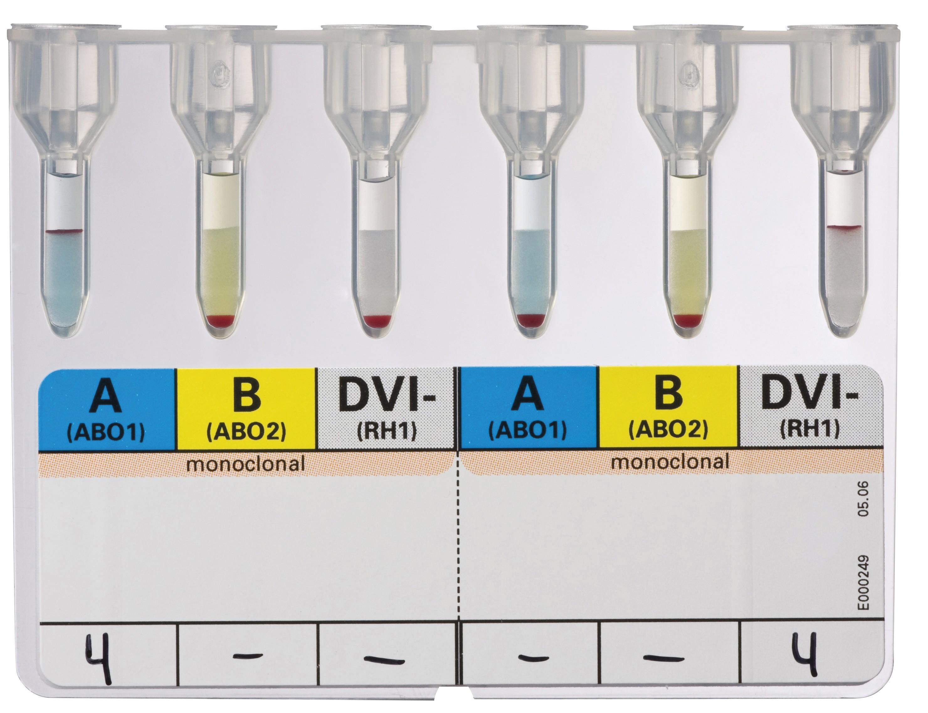ID-карта для реципиентов DiaClon ABD-Confirmation for Patients